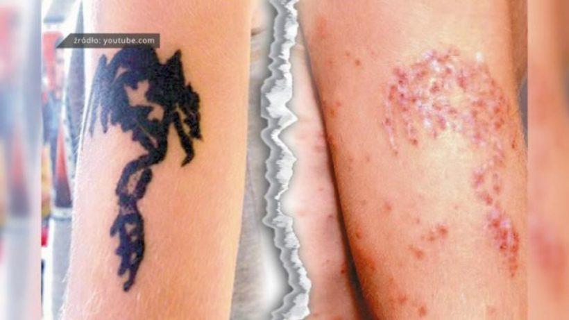 Sanepid Ostrzega Tatuaże Z Czarnej Henny Mogą Być